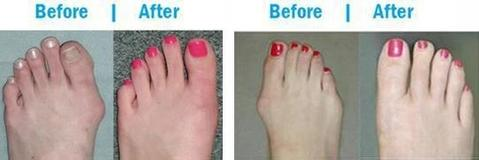 Premium Orthopedic Bunion Corrector Sandals - Women Comfy Platform Sandal Shoes for Toe Correction